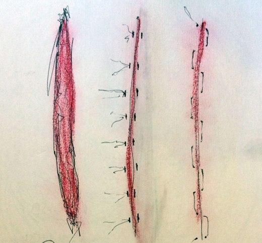 scars Sketch